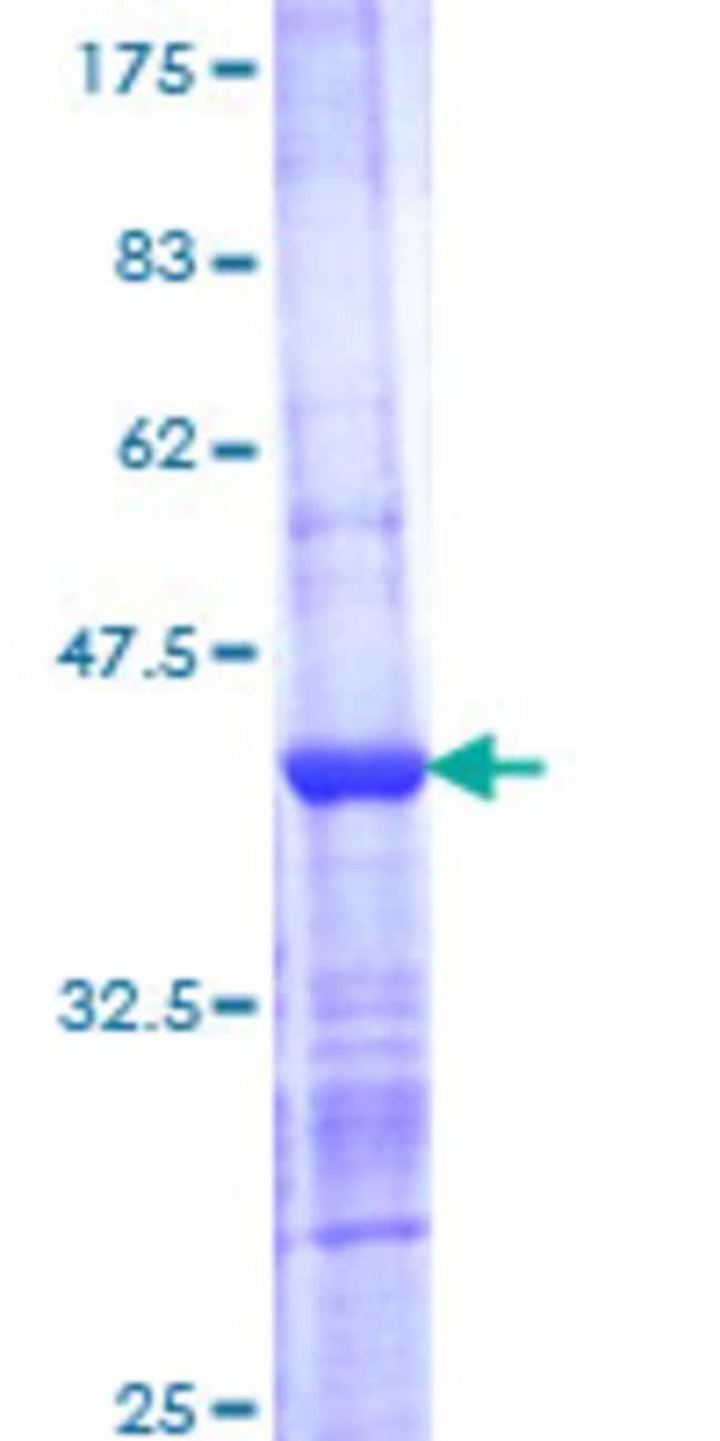 AbnovaHuman SNX7 Partial ORF (NP_057060, 120 a.a. - 226 a.a.) Recombinant