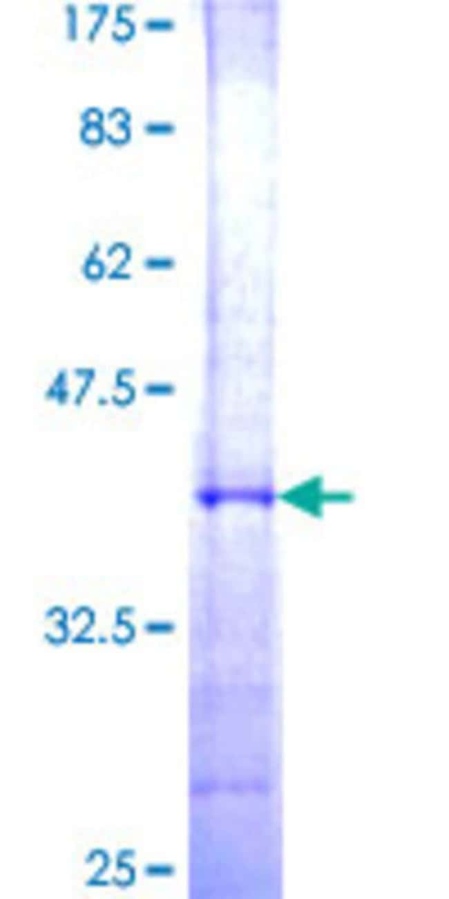 AbnovaHuman UCHL5 Partial ORF (NP_057068, 214 a.a. - 313 a.a.) Recombinant
