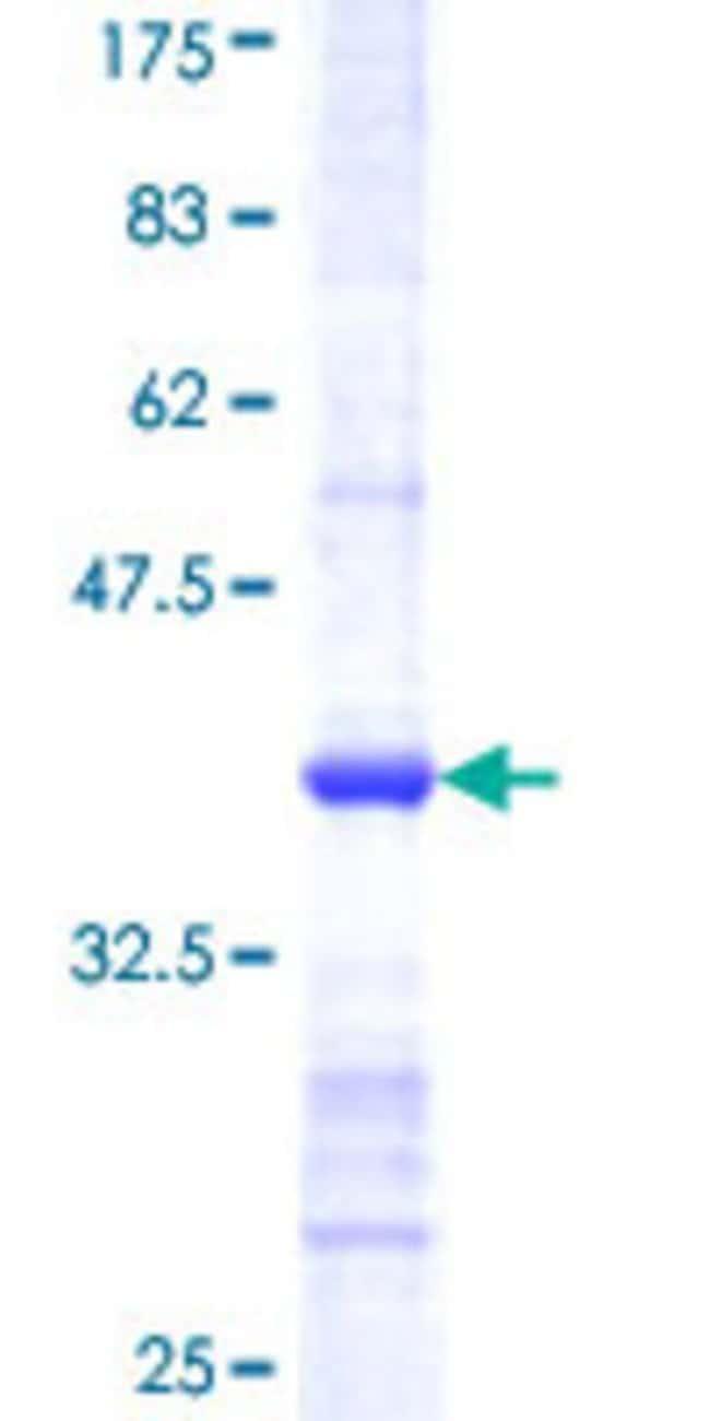 AbnovaHuman CSAD Partial ORF (NP_057073, 1 a.a. - 98 a.a.) Recombinant