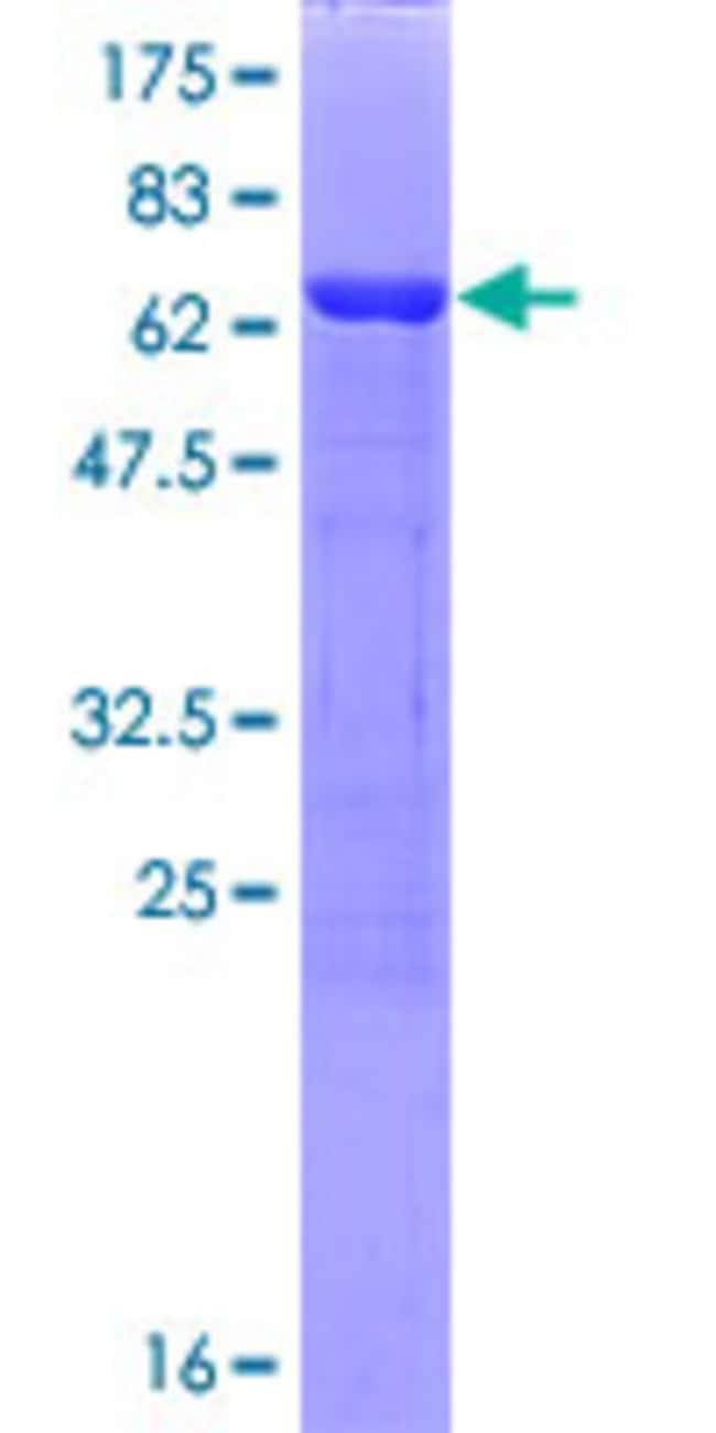 AbnovaHuman PPME1 Full-length ORF (NP_057231.1, 1 a.a. - 386 a.a.) Recombinant