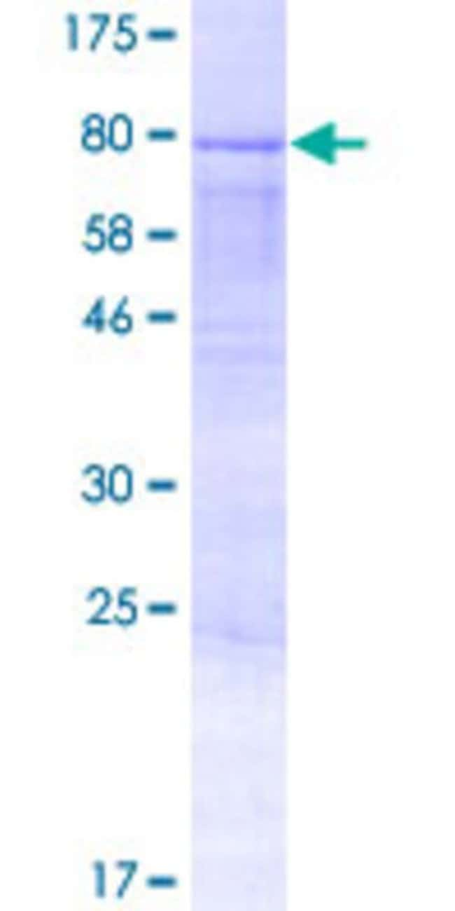 AbnovaHuman AMOTL2 Full-length ORF (AAH11454.1, 1 a.a. - 466 a.a.) Recombinant