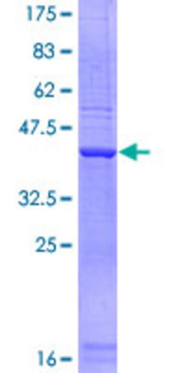 AbnovaHuman SCARA3 Partial ORF (NP_057324, 316 a.a. - 415 a.a.) Recombinant