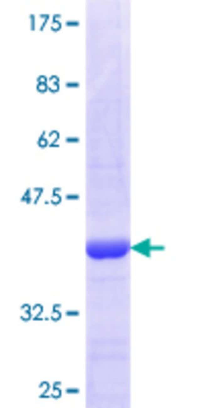 AbnovaHuman VGLL1 Partial ORF (NP_057351.1, 1 a.a. - 100 a.a.) Recombinant