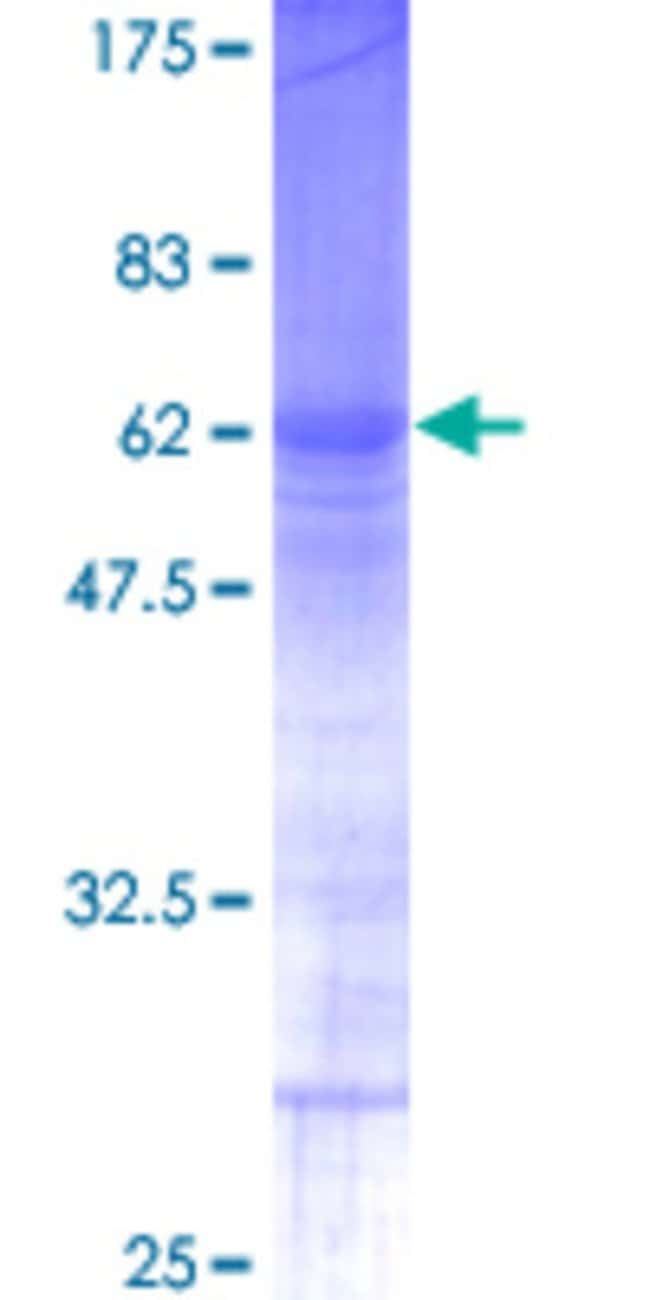 Abnova™Human RNF138 Full-length ORF (AAH18107, 1 a.a. - 245 a.a.) Recombinant Protein with GST-tag at N-terminal 25μg Abnova™Human RNF138 Full-length ORF (AAH18107, 1 a.a. - 245 a.a.) Recombinant Protein with GST-tag at N-terminal