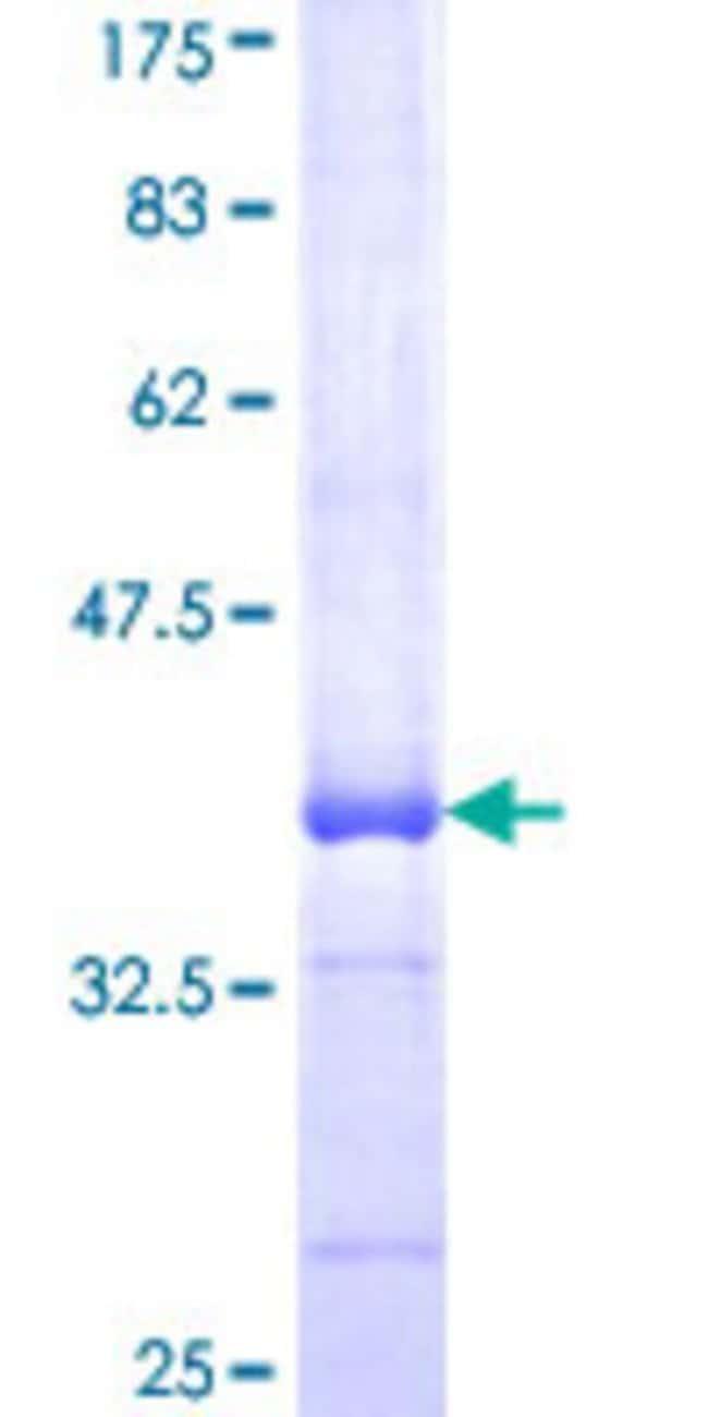 AbnovaHuman RNF138 Partial ORF (NP_055369, 51 a.a. - 150 a.a.) Recombinant