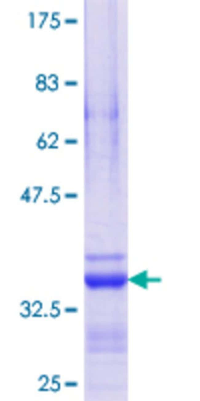 AbnovaHuman IHPK2 Partial ORF (NP_001005912.1, 1 a.a. - 70 a.a.) Recombinant
