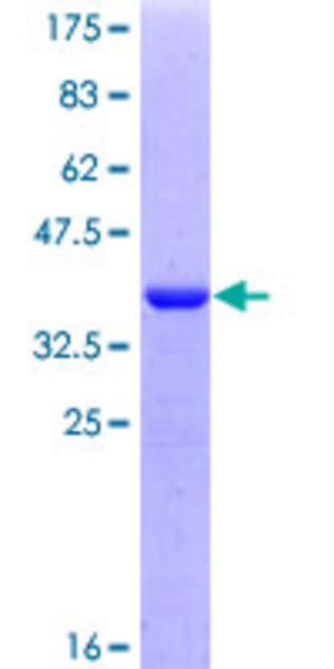 AbnovaHuman PRRX2 Partial ORF (NP_057391, 110 a.a. - 202 a.a.) Recombinant