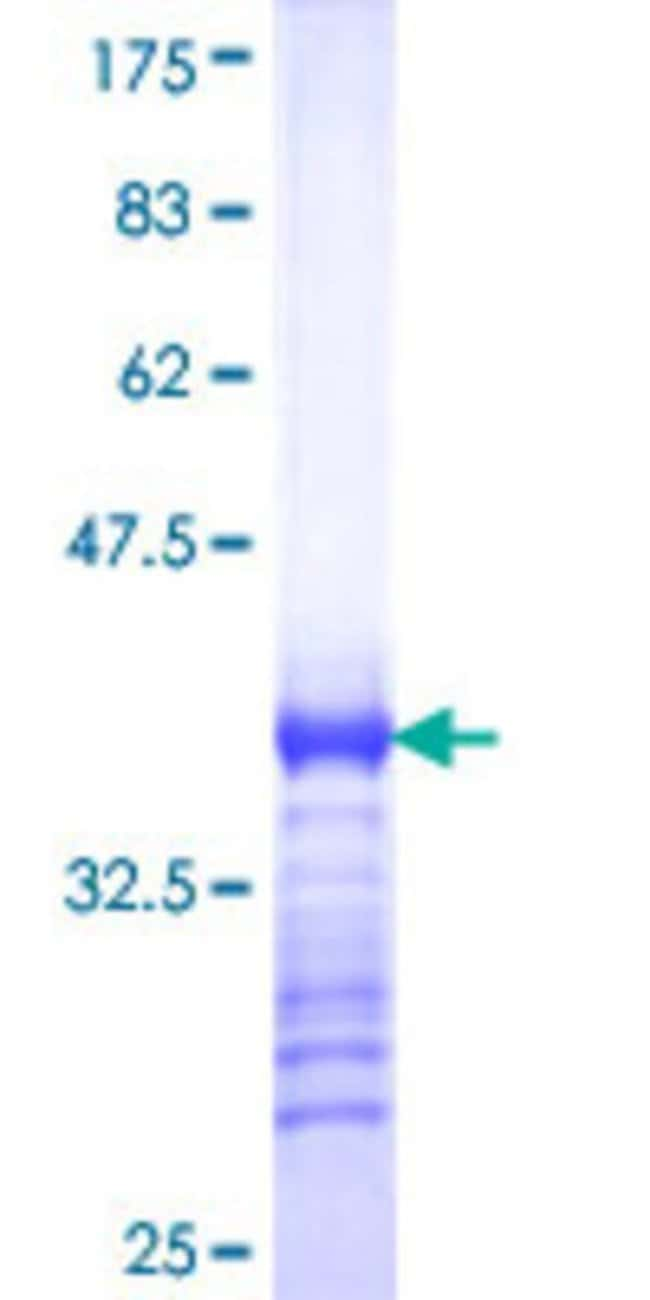 AbnovaHuman RHCG Partial ORF (NP_057405, 418 a.a. - 479 a.a.) Recombinant