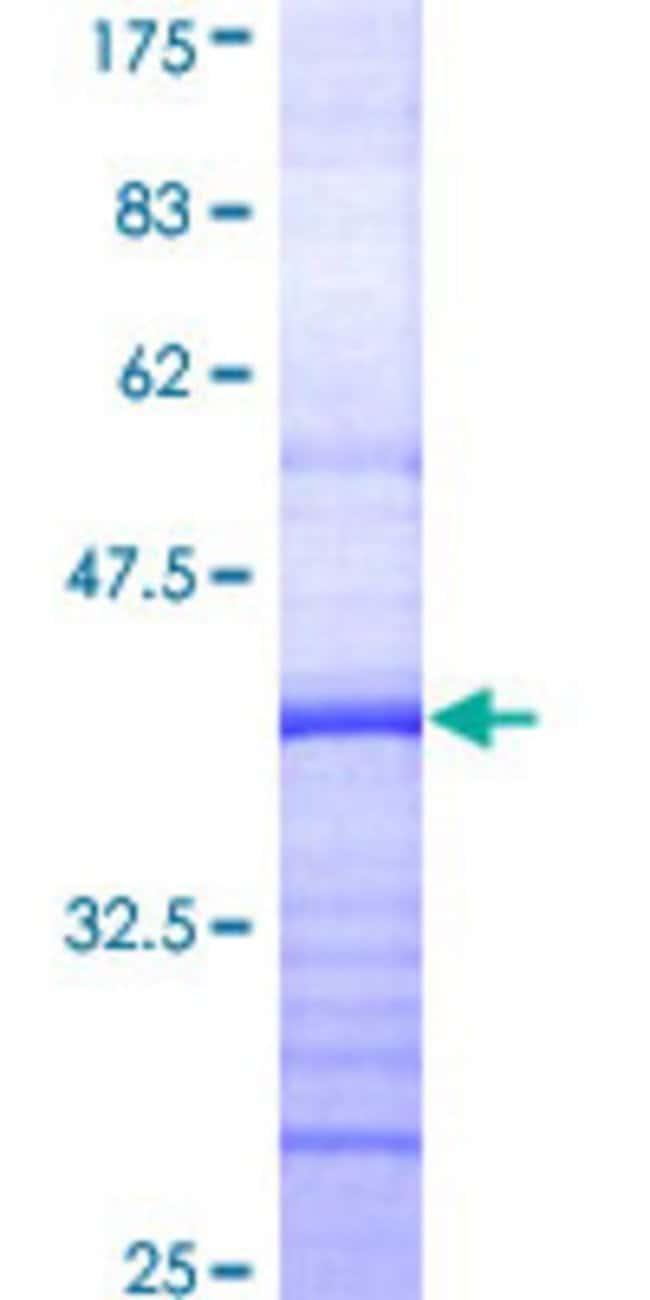 AbnovaHuman GPR89 Partial ORF (AAH03187, 175 a.a. - 284 a.a.) Recombinant