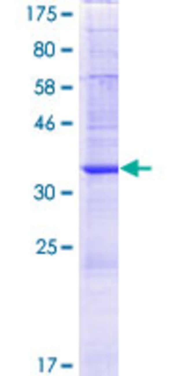 AbnovaHuman NAT8B Full-length ORF (AAH69564.1, 1 a.a. - 143 a.a.) Recombinant