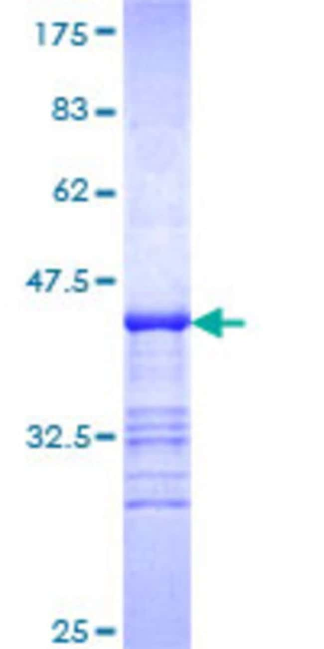 Abnova Human ISYNA1 Partial ORF (NP_057452, 331 a.a. - 430 a.a.) Recombinant