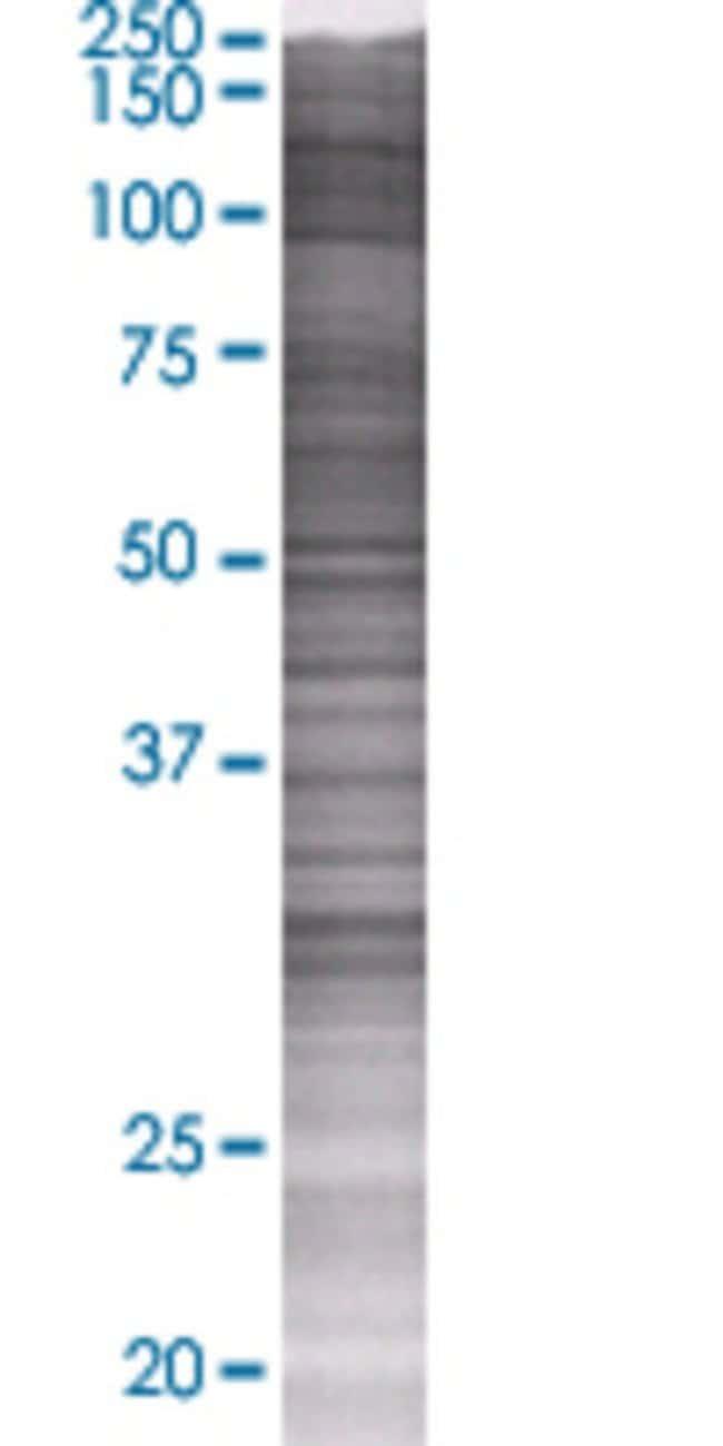 Abnova HSD17B7 293T Cell Transient Overexpression Lysate (Denatured) (T01)
