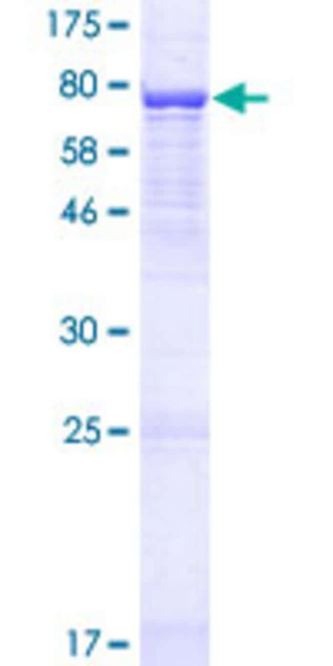 AbnovaHuman C22orf28 Full-length ORF (NP_055121.1, 1 a.a. - 505 a.a.) Recombinant