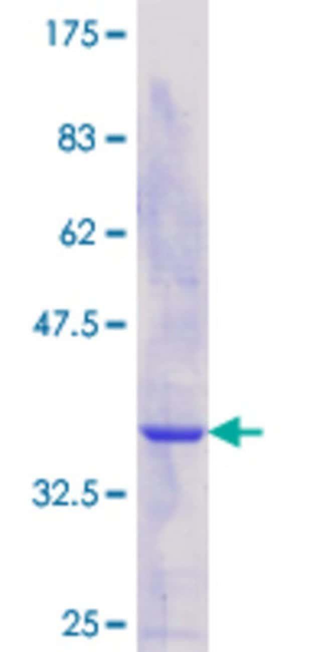AbnovaHuman TH1L Partial ORF (NP_057481.2, 491 a.a. - 590 a.a.) Recombinant