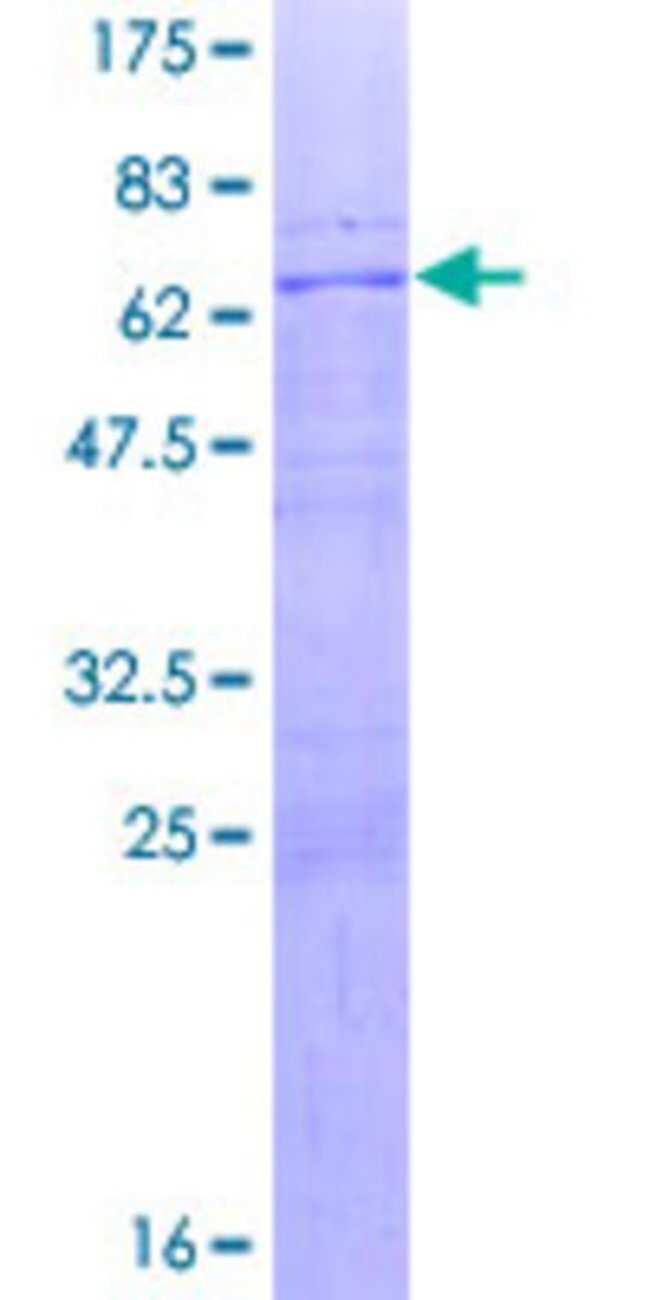AbnovaHuman ETV7 Full-length ORF (NP_057219.1, 1 a.a. - 341 a.a.) Recombinant
