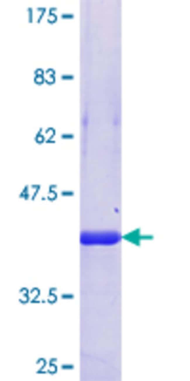 AbnovaHuman PPHLN1 Partial ORF (NP_958846.1, 168 a.a. - 258 a.a.) Recombinant