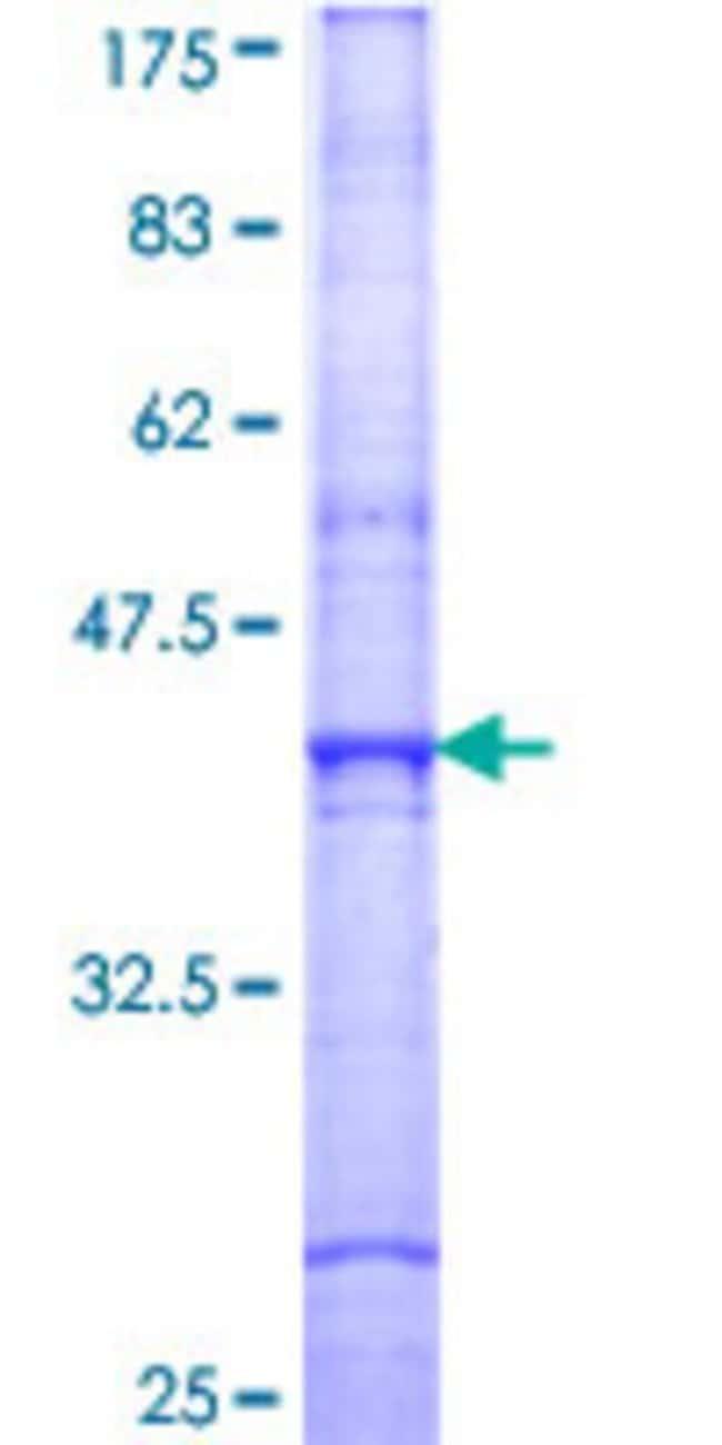 AbnovaHuman SIRT7 Partial ORF (NP_057622, 191 a.a. - 300 a.a.) Recombinant