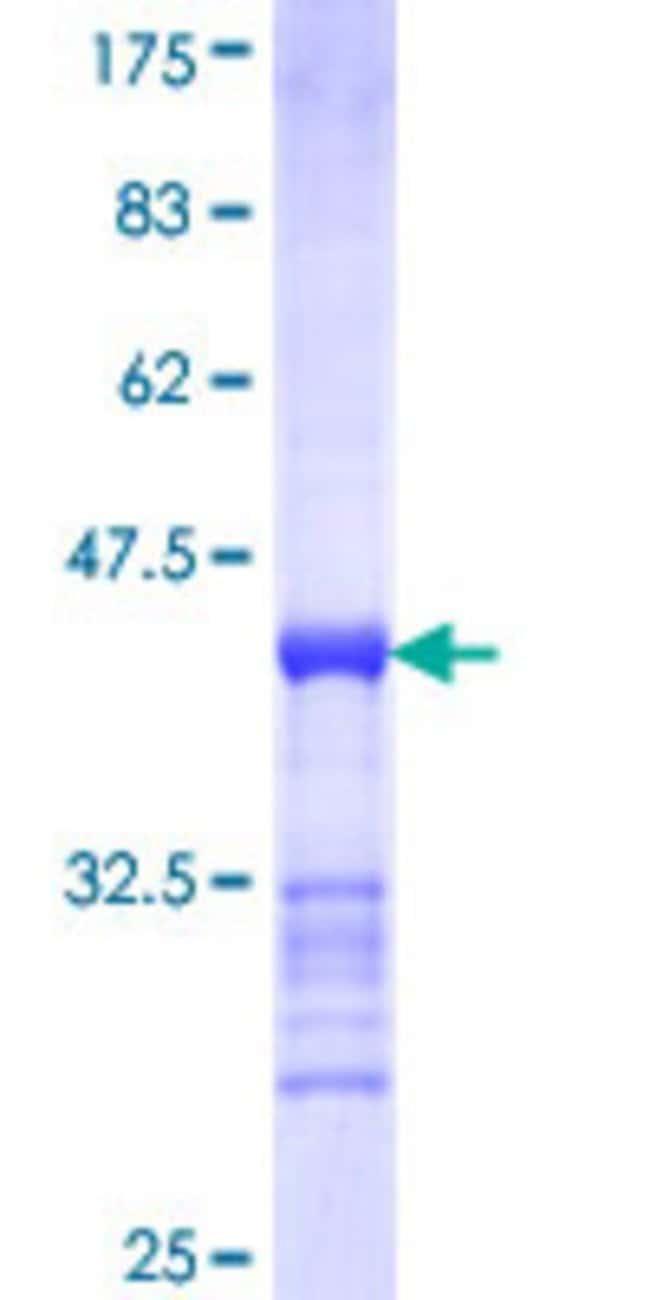 AbnovaHuman CINP Partial ORF (NP_116019, 1 a.a. - 110 a.a.) Recombinant