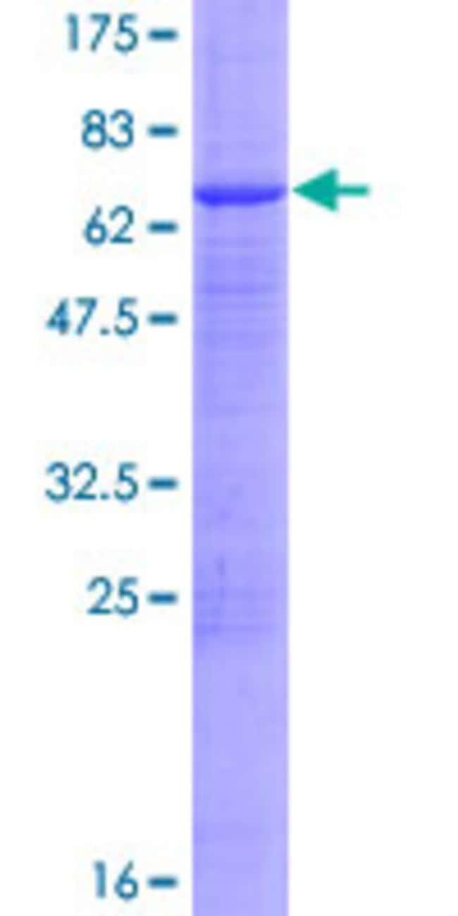 AbnovaHuman TTRAP Full-length ORF (NP_057698.2, 1 a.a. - 362 a.a.) Recombinant