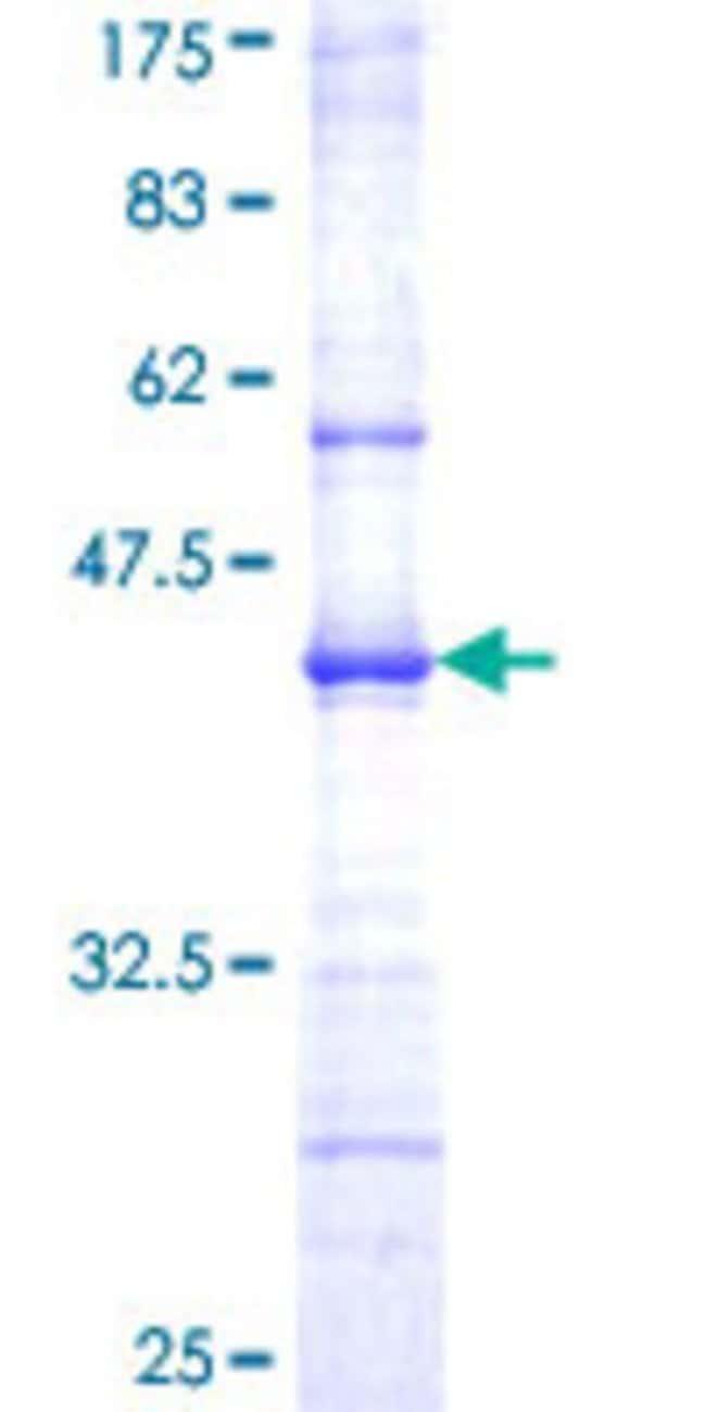 AbnovaHuman AZIN1 Partial ORF (NP_056962, 339 a.a. - 447 a.a.) Recombinant