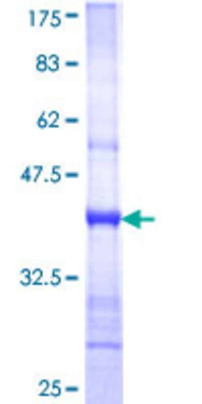 Abnova™ Human NAG Partial ORF (NP_056993, 2272 a.a. - 2371 a.a.) Recombinant Protein with GST-tag at N-terminal 25μg Abnova™ Human NAG Partial ORF (NP_056993, 2272 a.a. - 2371 a.a.) Recombinant Protein with GST-tag at N-terminal