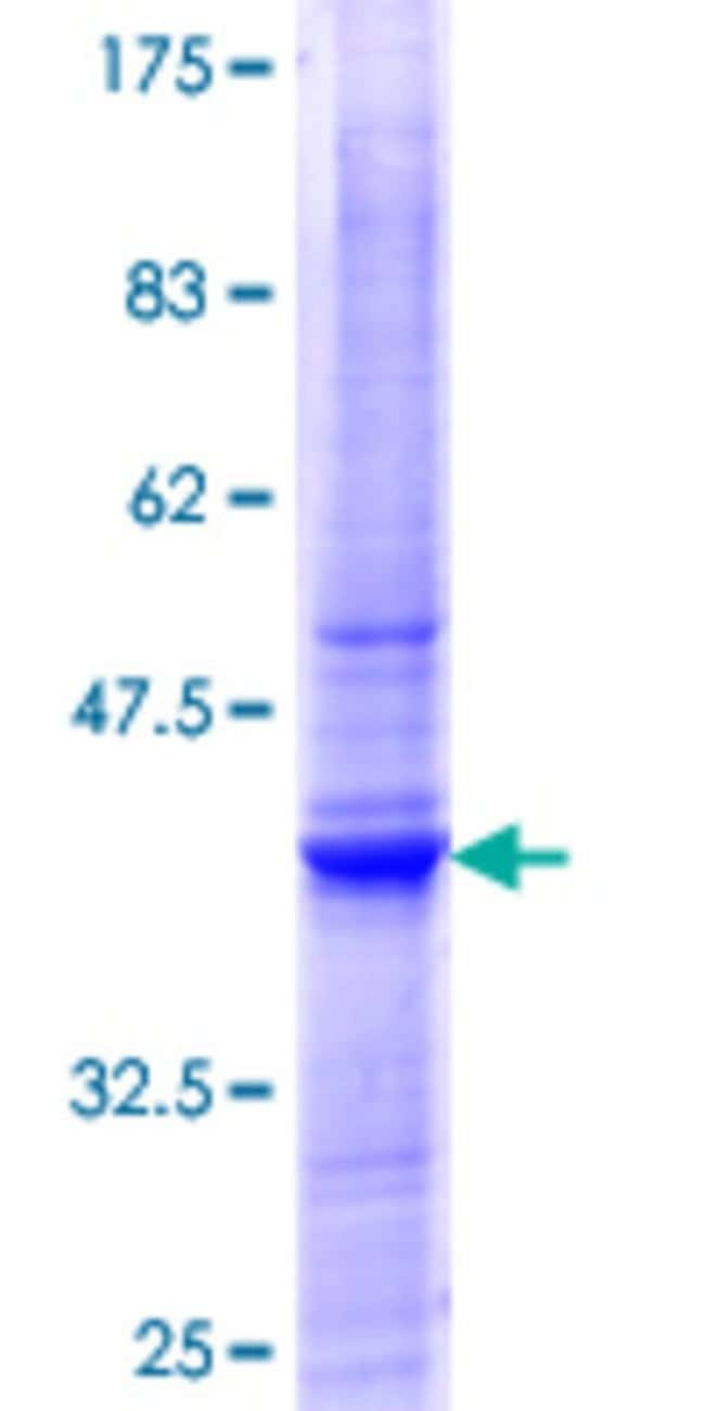 AbnovaHuman PIGT Partial ORF (NP_057021.2, 24 a.a. - 123 a.a.) Recombinant