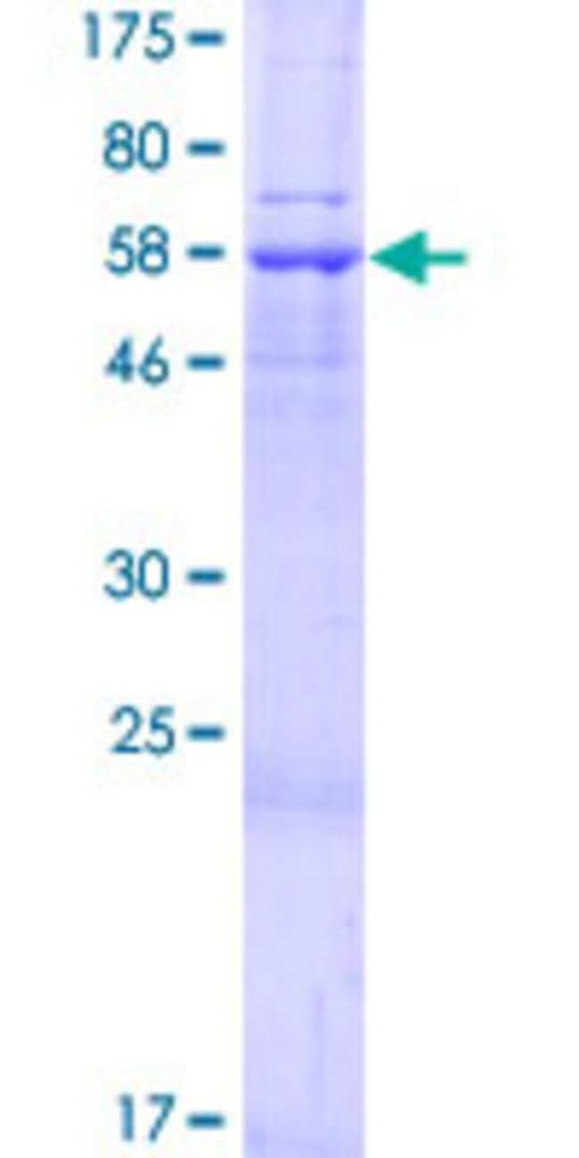 AbnovaHuman SLC25A39 Full-length ORF (NP_057100.1, 1 a.a. - 351 a.a.) Recombinant