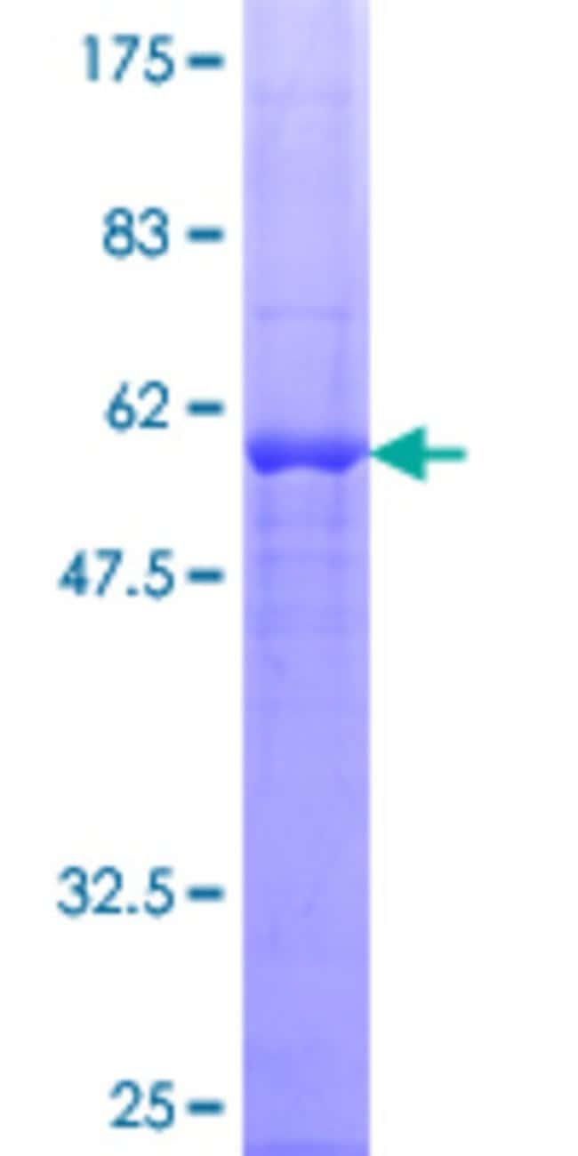 Abnova™Human RASD1 Full-length ORF (NP_057168.1, 1 a.a. - 281 a.a.) Recombinant Protein with GST-tag at N-terminal 25μg Abnova™Human RASD1 Full-length ORF (NP_057168.1, 1 a.a. - 281 a.a.) Recombinant Protein with GST-tag at N-terminal