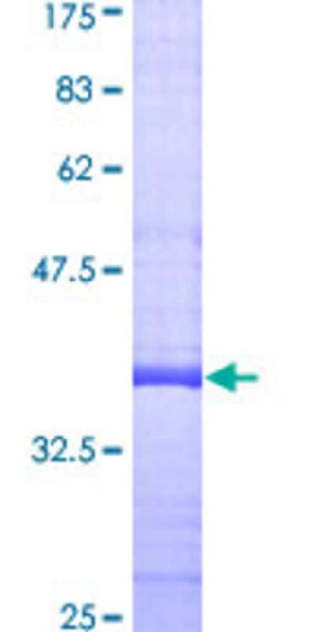 AbnovaHuman RASD1 Partial ORF (AAH18041, 1 a.a. - 110 a.a.) Recombinant