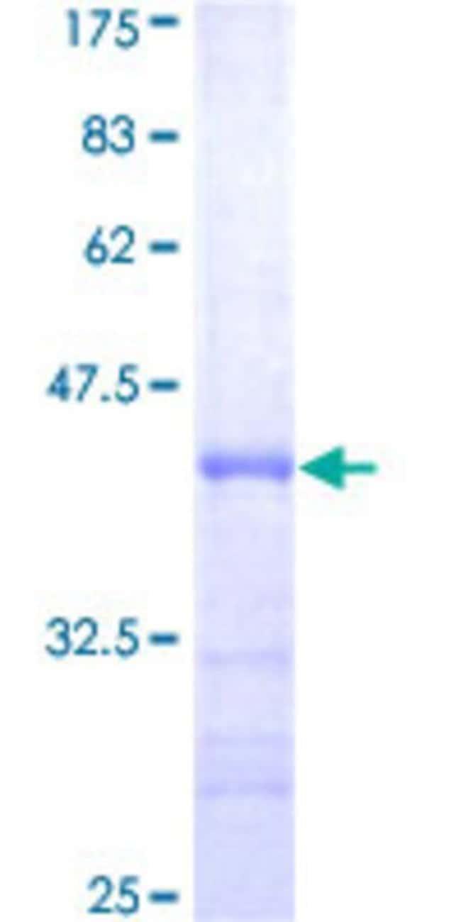 AbnovaHuman Pfs2 Partial ORF (AAH03186, 1 a.a. - 100 a.a.) Recombinant