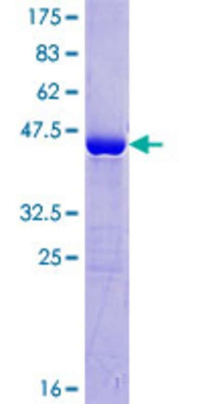 AbnovaHuman CGI-38 Full-length ORF (NP_057048.2, 1 a.a. - 176 a.a.) Recombinant