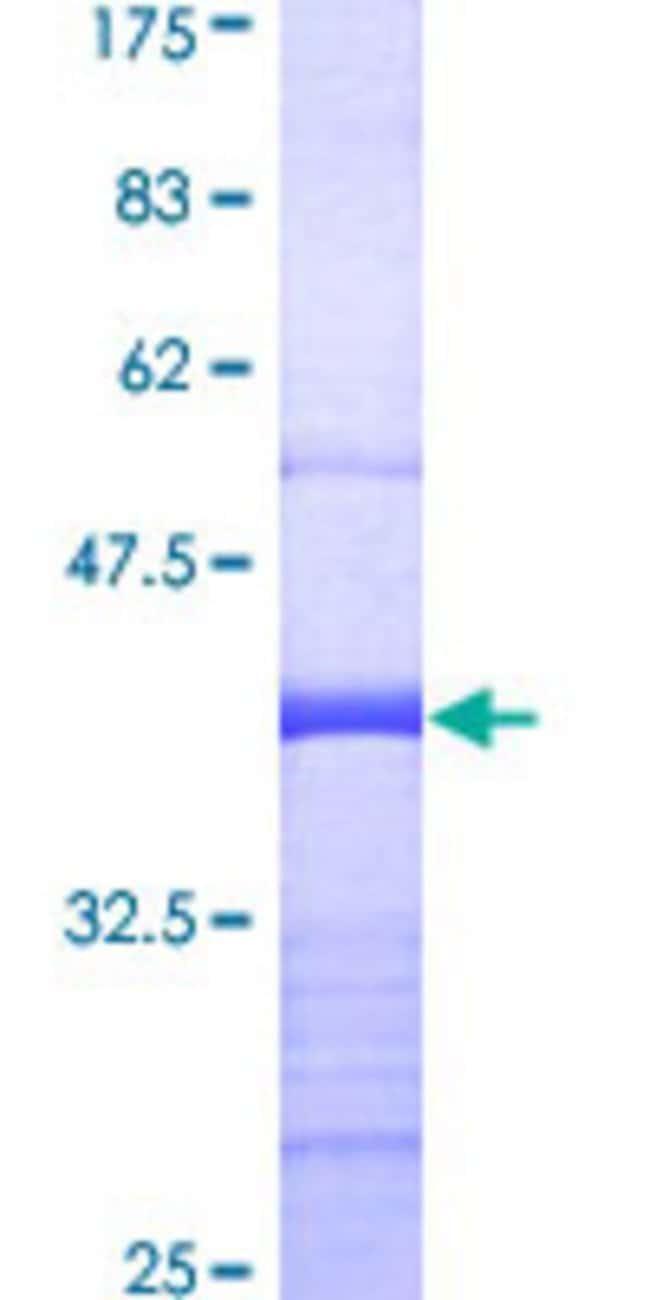 AbnovaHuman SUFU Partial ORF (AAH13291, 181 a.a. - 280 a.a.) Recombinant