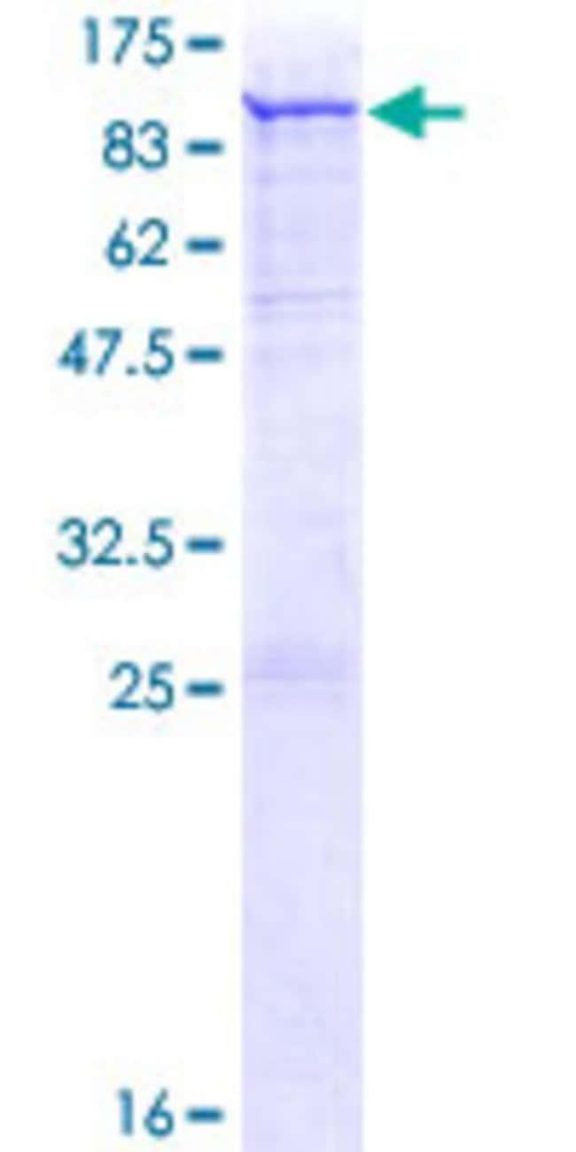 AbnovaHuman PADI3 Full-length ORF (NP_057317.2, 1 a.a. - 664 a.a.) Recombinant