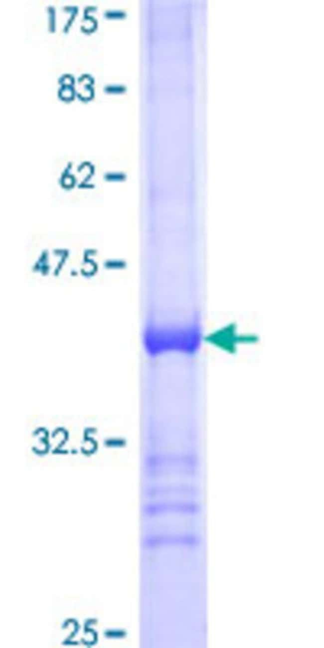 AbnovaHuman ACSL5 Partial ORF (NP_057318, 91 a.a. - 186 a.a.) Recombinant