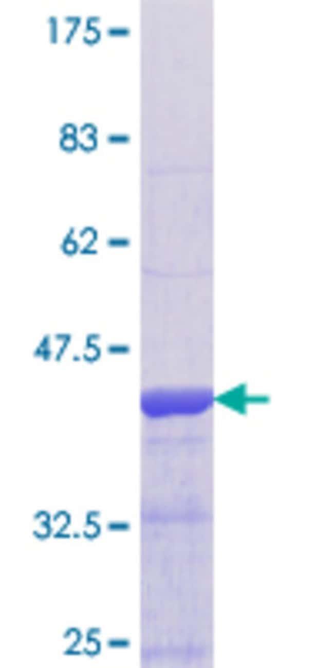 AbnovaHuman GPRC5B Partial ORF (NP_057319.1, 302 a.a. - 403 a.a.) Recombinant
