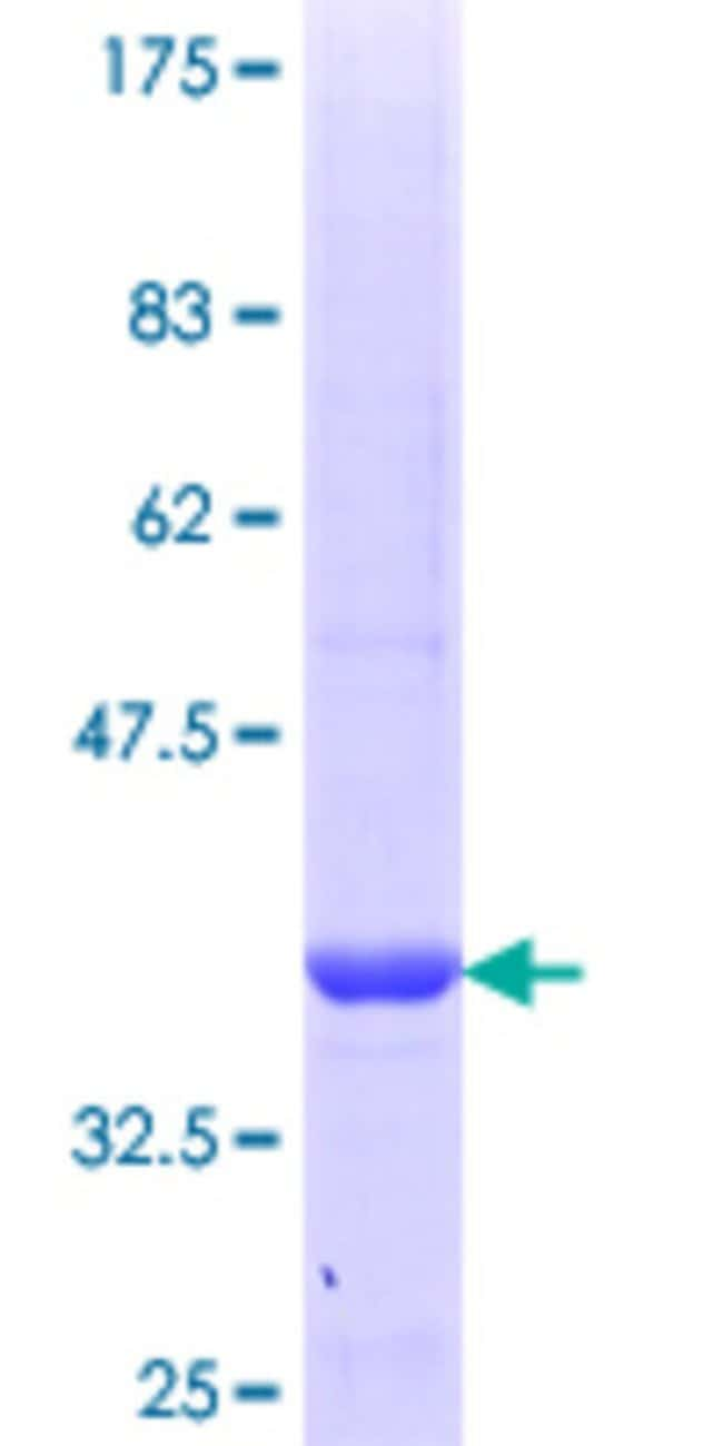 Abnova™ Human CYB5R1 Partial ORF (NP_057327.2, 207 a.a. - 305 a.a.) Recombinant Protein with GST-tag at N-terminal 10μg Abnova™ Human CYB5R1 Partial ORF (NP_057327.2, 207 a.a. - 305 a.a.) Recombinant Protein with GST-tag at N-terminal
