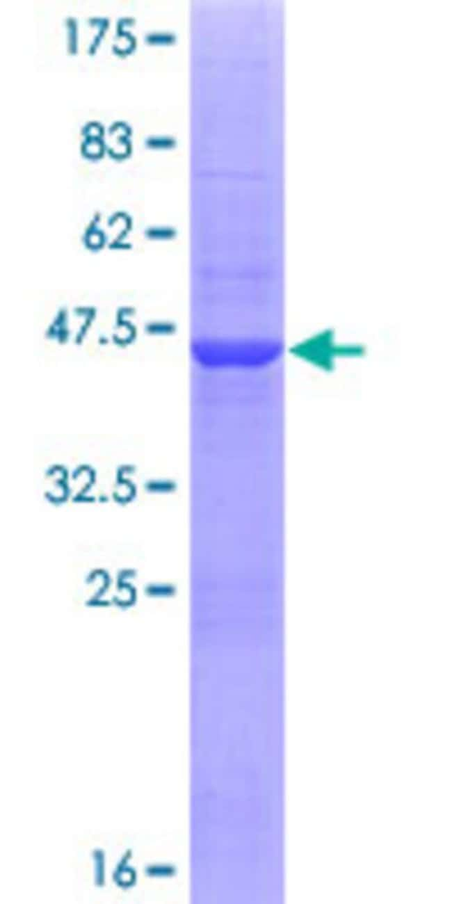 Abnova™Human ZNF44 Full-length ORF (AAH32246.1, 1 a.a. - 154 a.a.) Recombinant Protein with GST-tag at N-terminal 25μg Abnova™Human ZNF44 Full-length ORF (AAH32246.1, 1 a.a. - 154 a.a.) Recombinant Protein with GST-tag at N-terminal