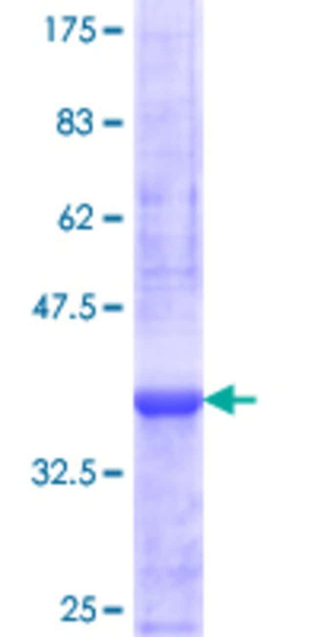 AbnovaHuman ZNF44 Partial ORF (NP_057348.2, 1 a.a. - 103 a.a.) Recombinant