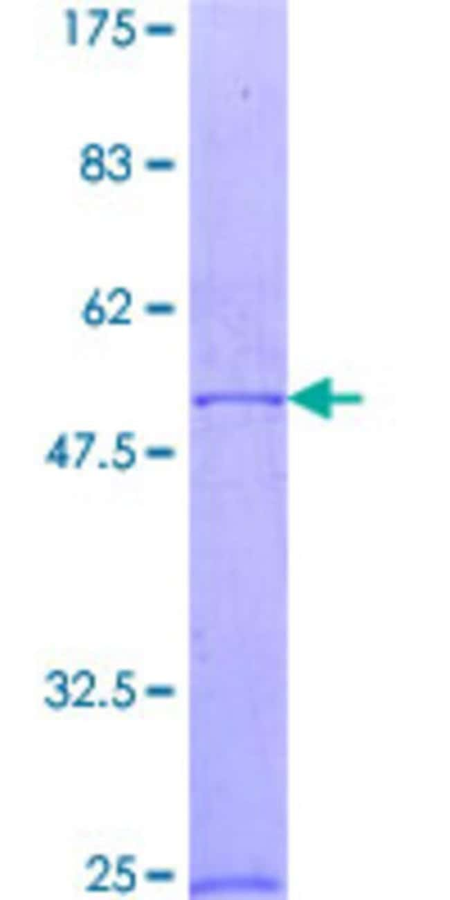 AbnovaHuman RAB23 Full-length ORF (NP_057361.3, 1 a.a. - 237 a.a.) Recombinant