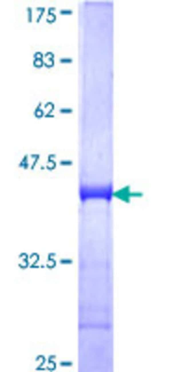 AbnovaHuman CMPK Partial ORF (NP_057392, 72 a.a. - 181 a.a.) Recombinant