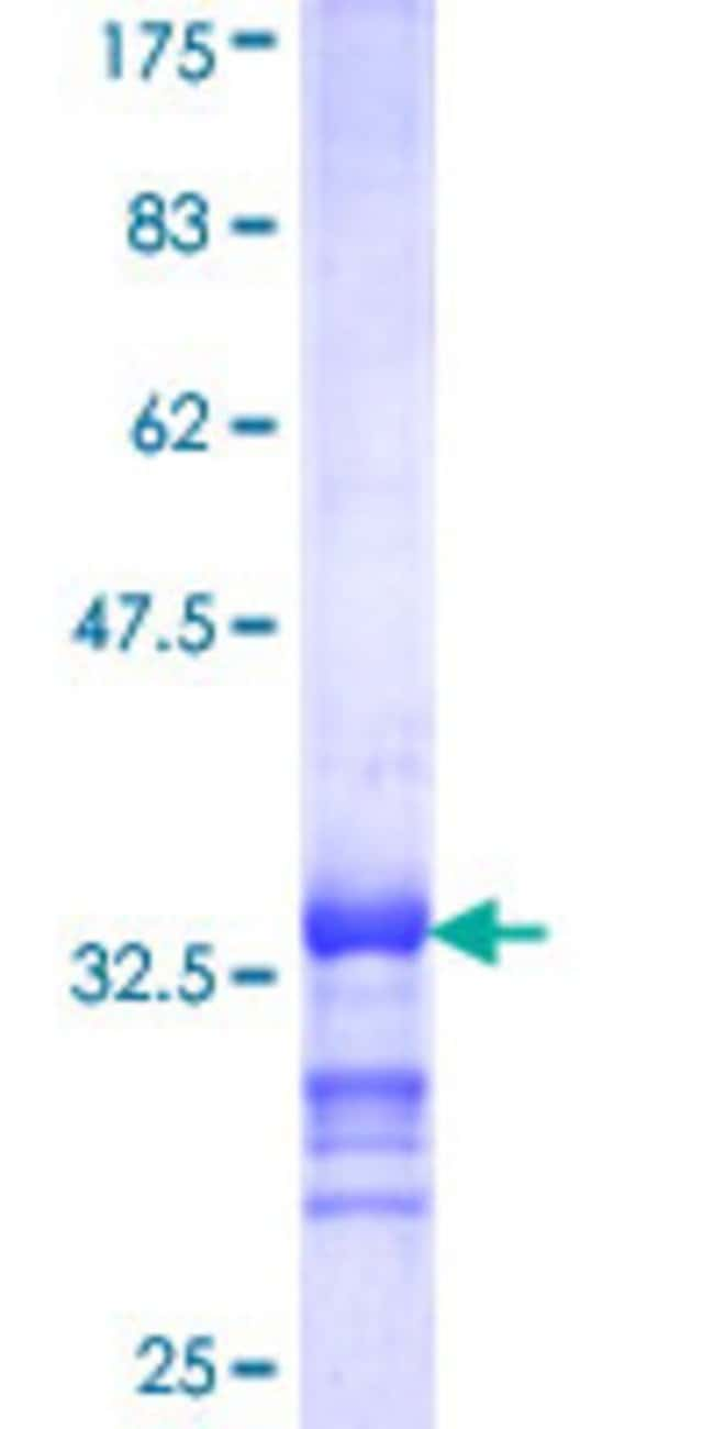 AbnovaHuman SEPX1 Partial ORF (NP_057416, 1 a.a. - 84 a.a.) Recombinant