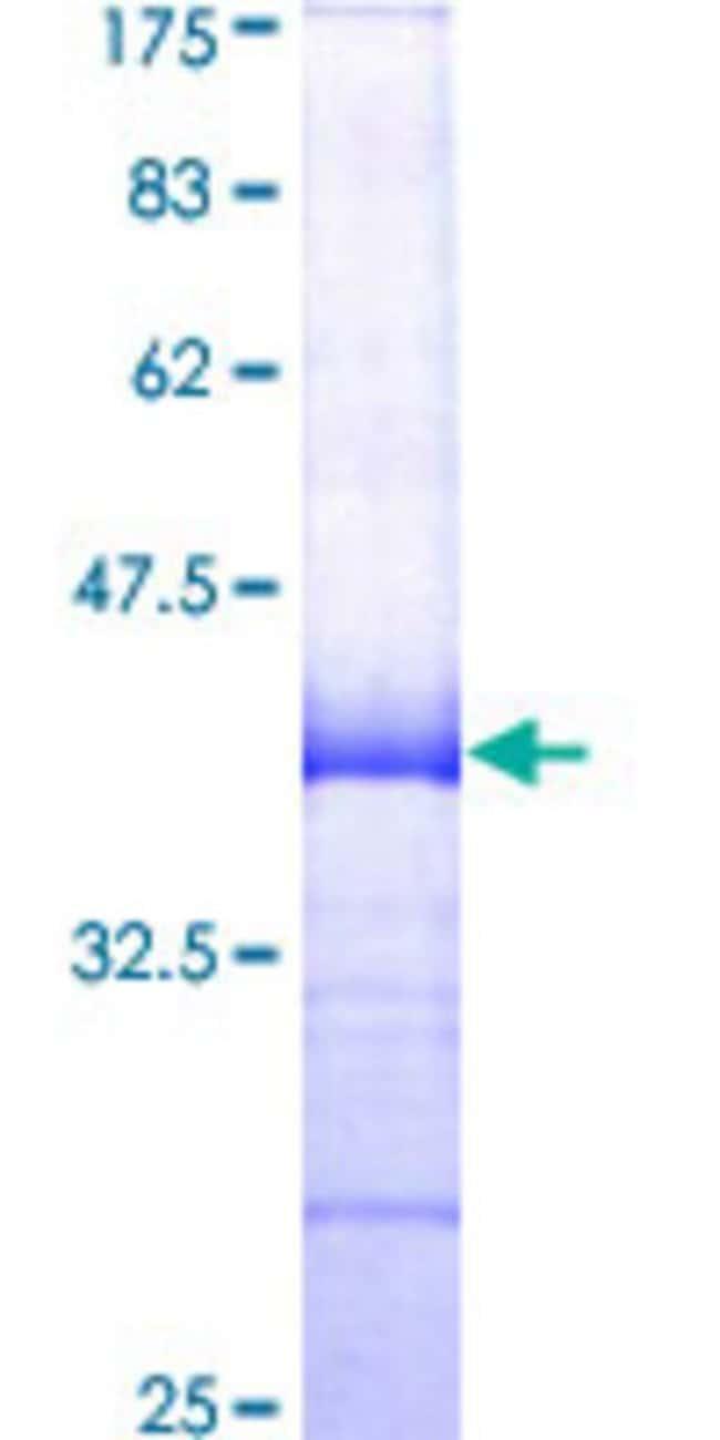 AbnovaHuman CD244 Partial ORF (AAH53985, 125 a.a. - 224 a.a.) Recombinant