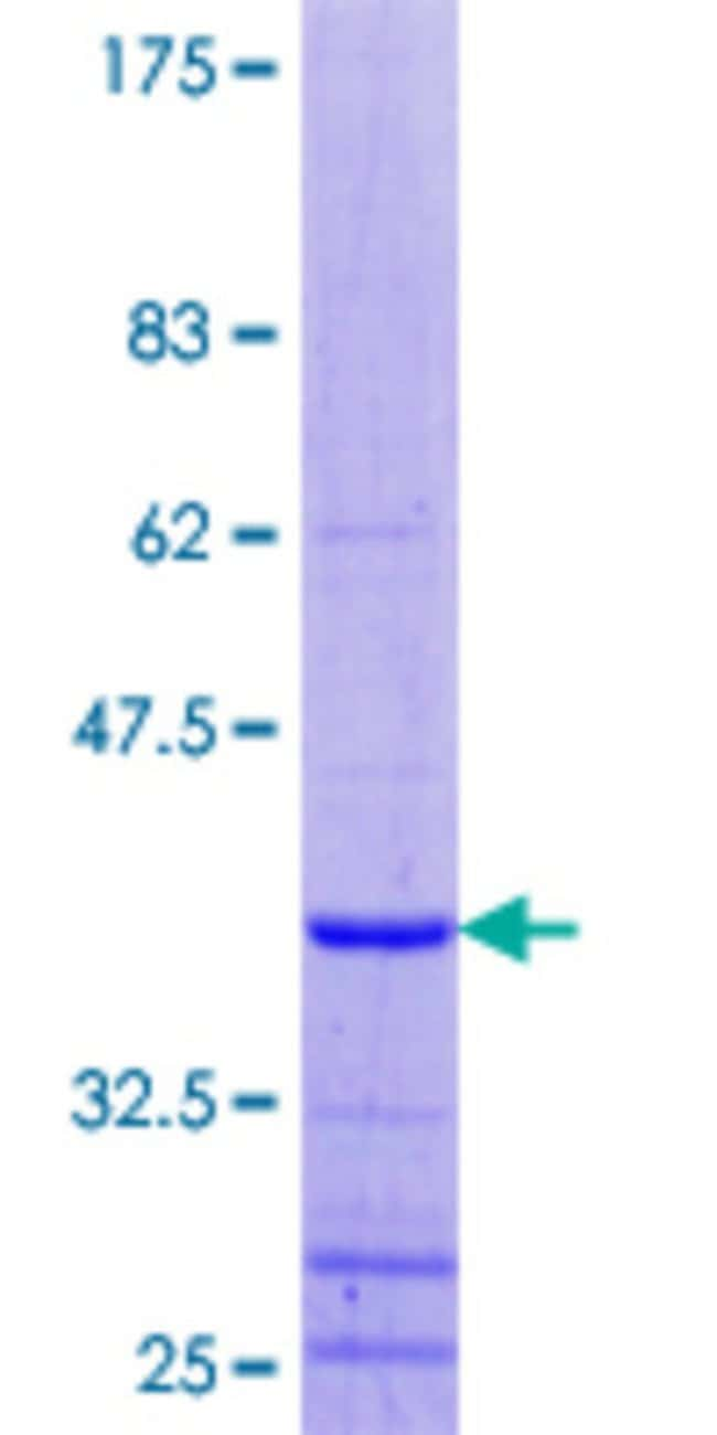 AbnovaHuman CROP Full-length ORF (AAH56409.1, 1 a.a. - 79 a.a.) Recombinant