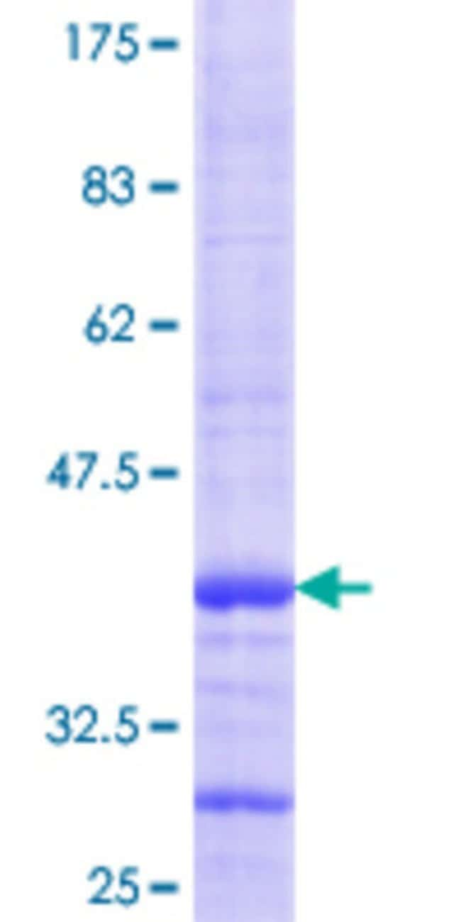 Abnova™Human RAB8B Partial ORF (NP_057614.1, 101 a.a. - 207 a.a.) Recombinant Protein with GST-tag at N-terminal 10μg Abnova™Human RAB8B Partial ORF (NP_057614.1, 101 a.a. - 207 a.a.) Recombinant Protein with GST-tag at N-terminal