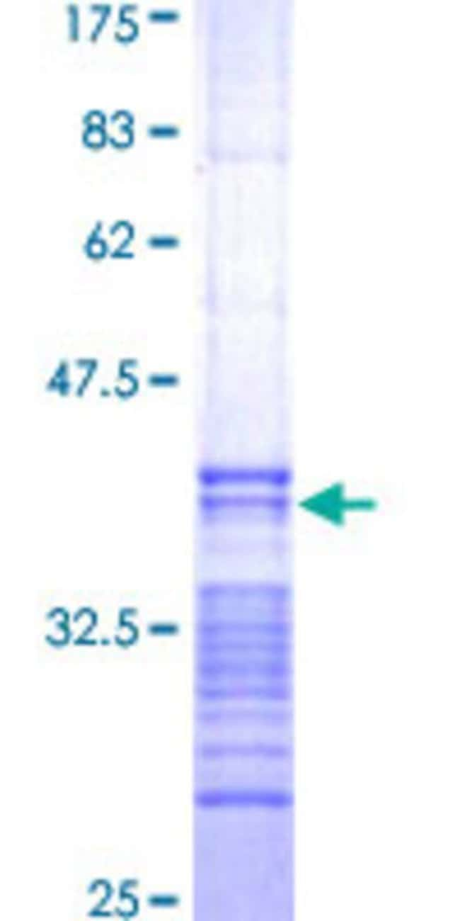 AbnovaHuman MASK Partial ORF (AAH17213, 1 a.a. - 90 a.a.) Recombinant Protein