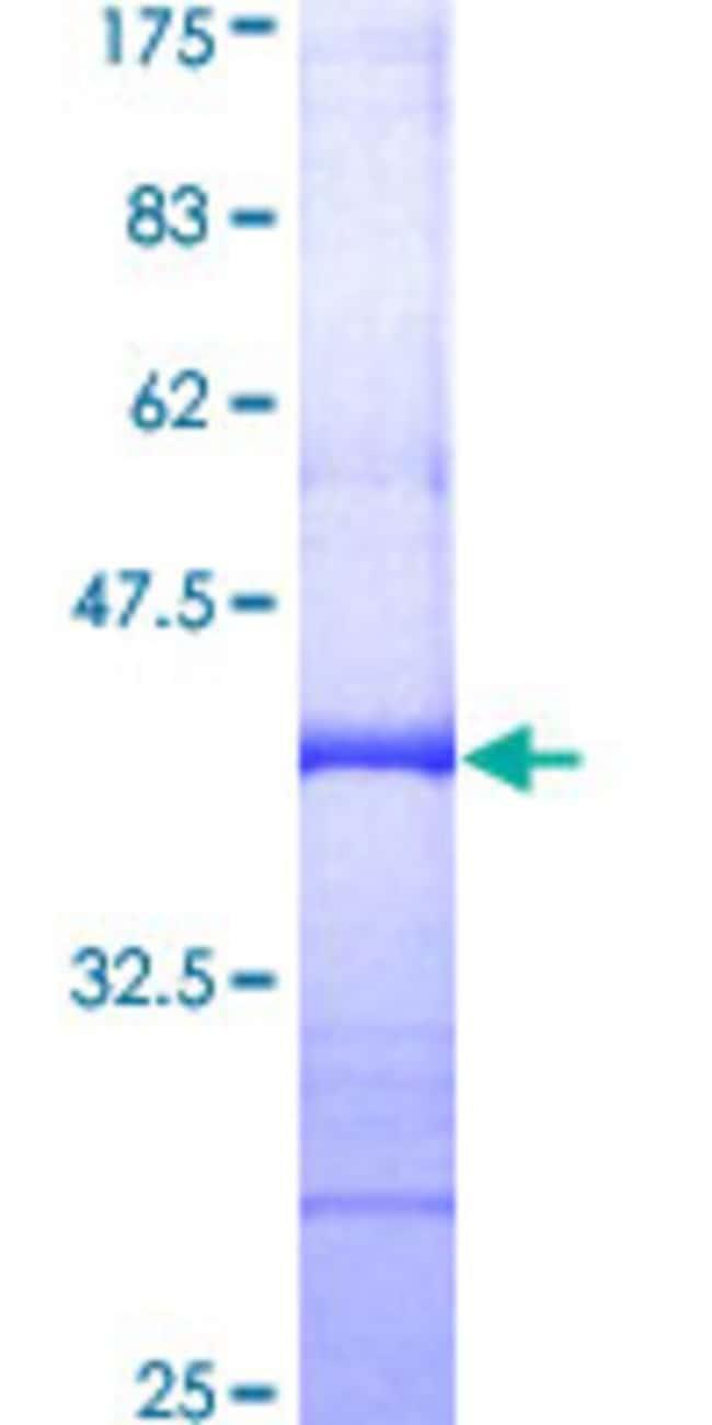 AbnovaHuman ZAK Partial ORF (AAH01401, 1 a.a. - 120 a.a.) Recombinant Protein