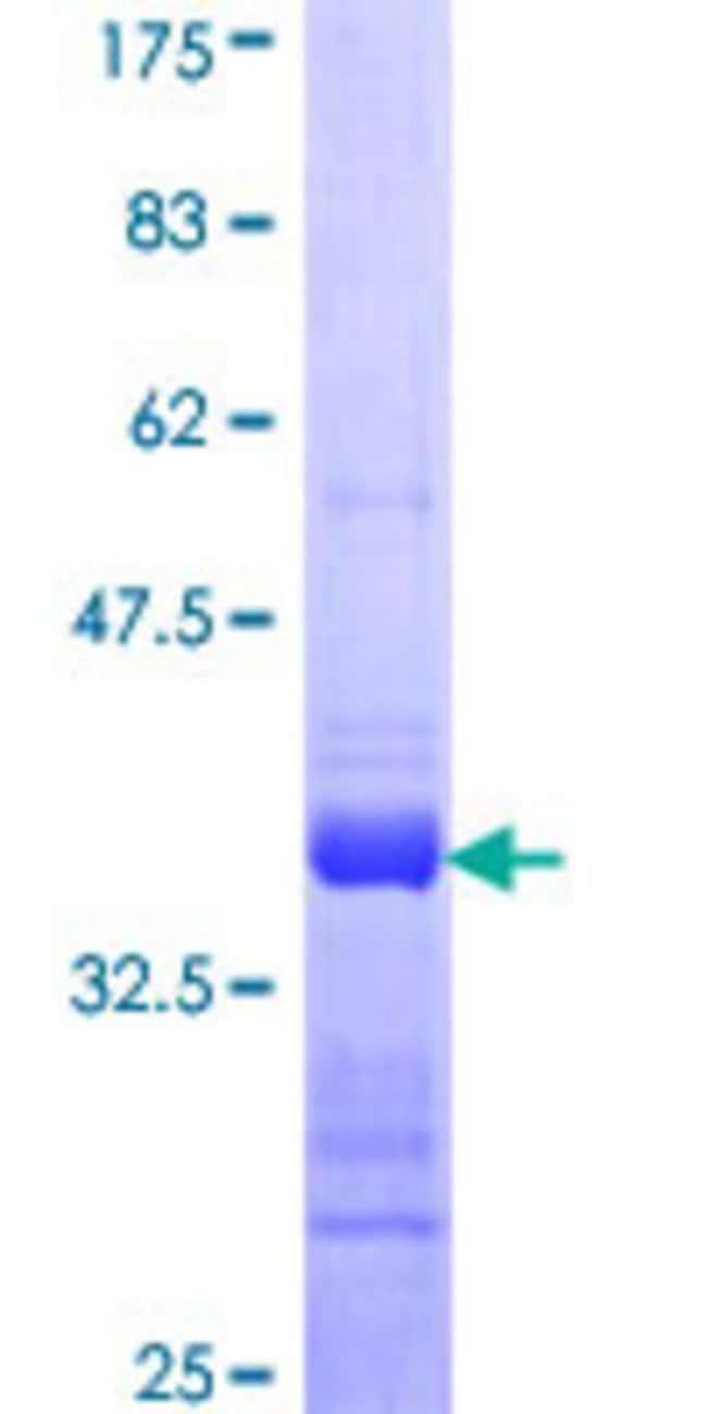 AbnovaHuman CALML5 Partial ORF (NP_059118, 47 a.a. - 146 a.a.) Recombinant
