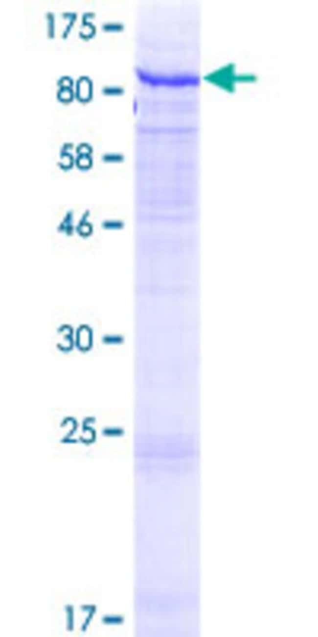 Abnova™Human GALNT7 Full-length ORF (AAH46129.1, 1 a.a. - 657 a.a.) Recombinant Protein with GST-tag at N-terminal 25μg Abnova™Human GALNT7 Full-length ORF (AAH46129.1, 1 a.a. - 657 a.a.) Recombinant Protein with GST-tag at N-terminal