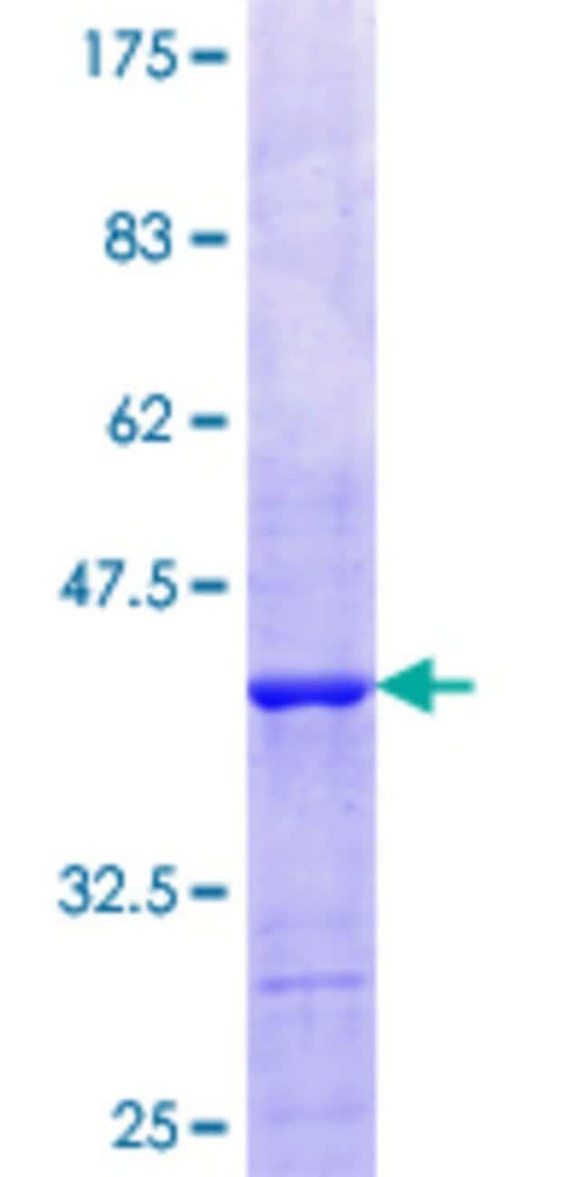 AbnovaHuman CECR1 Partial ORF (NP_059120.2, 402 a.a. - 511 a.a.) Recombinant