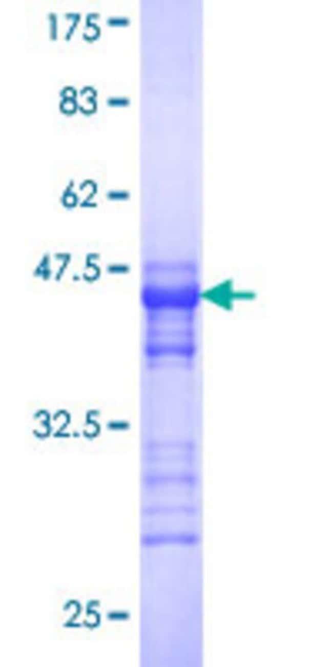 AbnovaHuman SPA17 Partial ORF (NP_059121, 51 a.a. - 149 a.a.) Recombinant